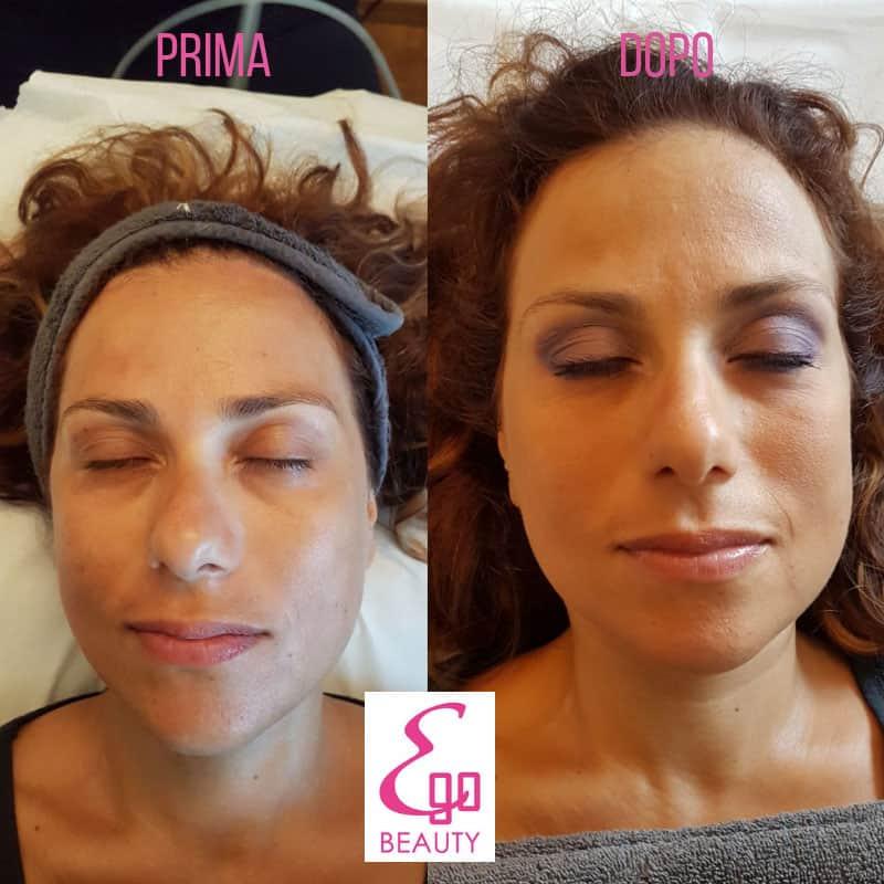 trattamenti viso rosignano solvay